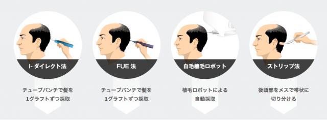 自毛植毛の種類