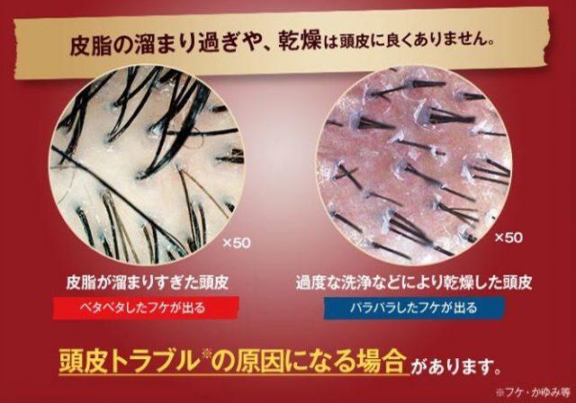 頭皮トラブルの原因となりうる頭皮環境