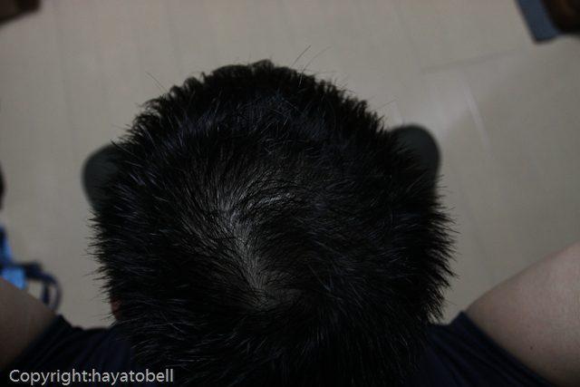 濃密育毛剤BUBKA 体験24日目