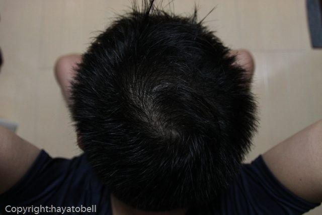 濃密育毛剤BUBKA 体験30日目