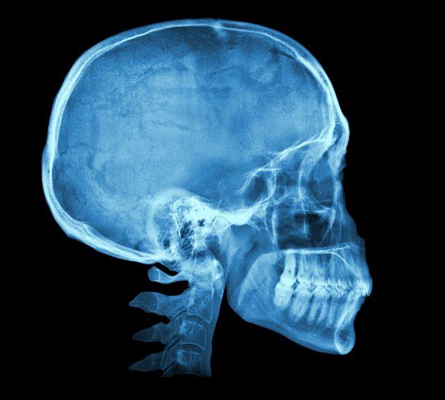 頭骸骨のX線写真