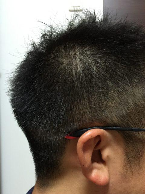 サイドからの髪型