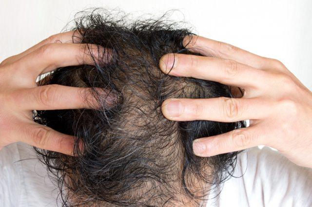 不衛生な頭皮環境