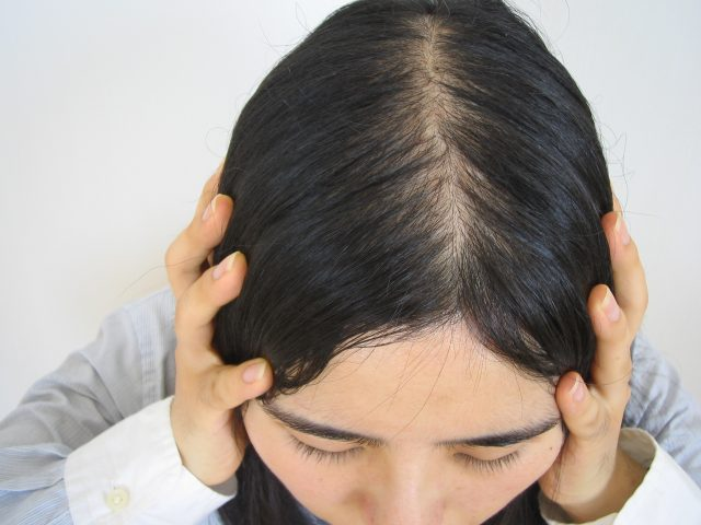 薄毛に悩む中年女性