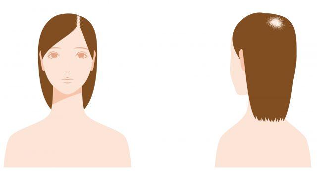 薄毛が目立つ部分(頭頂部と分け目)