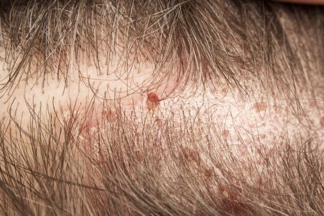 頭皮にできた湿疹