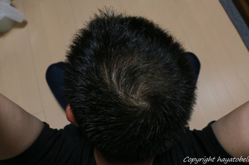 リデン体験談10日目(4月26日)の写真