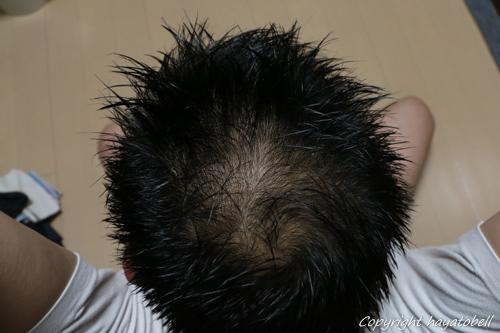 リデン体験談27日目(5月13日)の写真