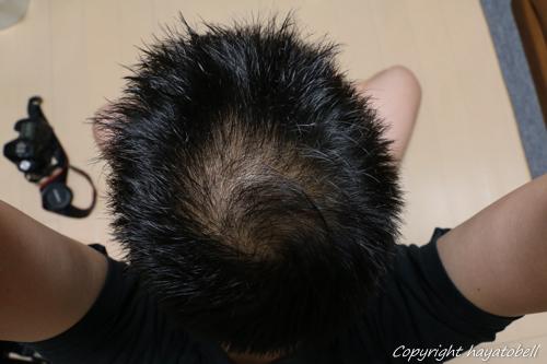 リデン体験談30日目(5月16日)の写真