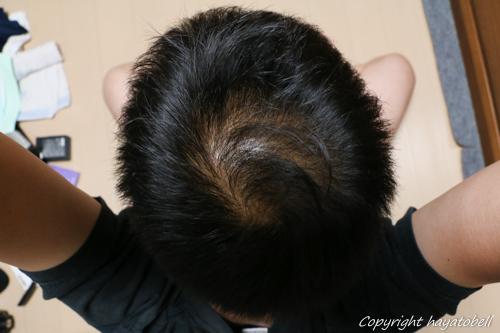 リデン体験談41日目(5月27日)の写真