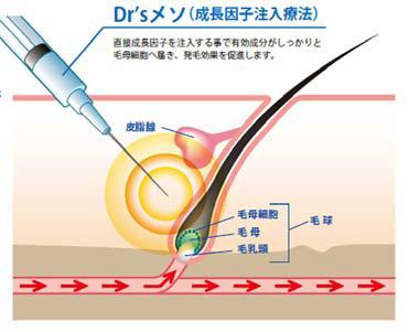 drsメソ(ミノキシジル+成長因子注入療法)